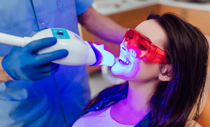 laser teeth whitening-min